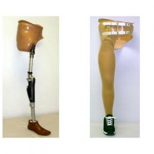 other prostheses
